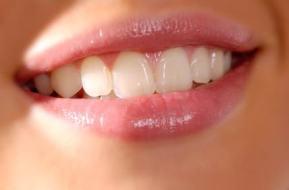 Cómo Cuidar los dientes y evitar las bacterias para tener una boca sana