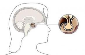 La Glándula Pituitaria o Hipófisis: qué es y funciones en el organismo