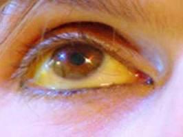 Ojos amarillos o Ictericia.  Causas y Tratamiento Natural