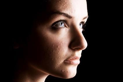 Zinc para curar piel y tratar el Acné
