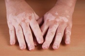 Remedios Caseros para el Vitiligo