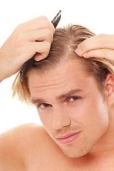 Mascarillas para la caída del cabello: Remedios naturales caseros