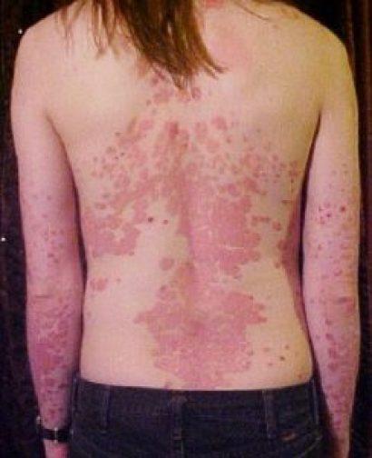 Psoriasis, Qué Es y Cómo Tratar Esta Enfermedad De la Piel