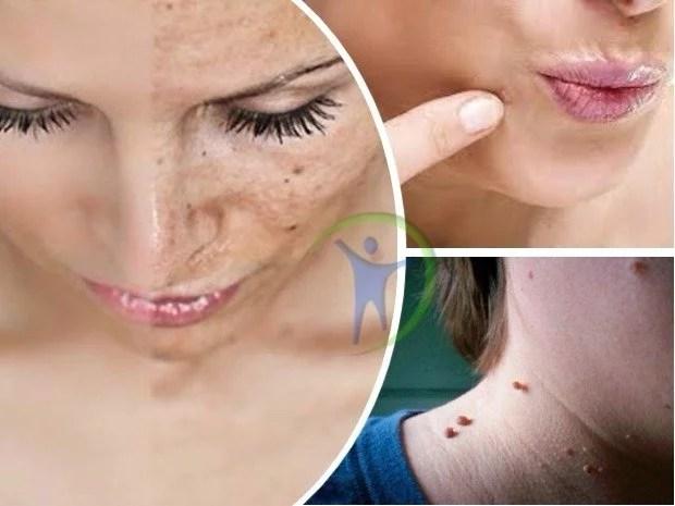 como eliminar lunares verrugas espinillas y manchas de la piel naturalmente