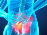 Resultados a largo plazo del estudio de Fase 3 SPARTAN demostraron que el tratamiento disminuyó riesgo de muerte en 25%