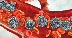 9 de cada 10 pacientes con la leucemia más frecuente ya pueden tratarse sin quimioterapia