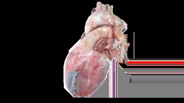 El Sistema de mejora ventricular Transcatheter Revivent TC para insuficiencia cardíaca recibe el visto bueno de FDA