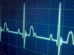 Investigadores demuestran se pueden detectar eventos hipoglucémicos a través de inteligencia artificial