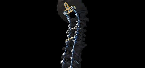 Nueva herramienta quirúrgica para mejorar el tratamiento de columnas vertebrales frágiles