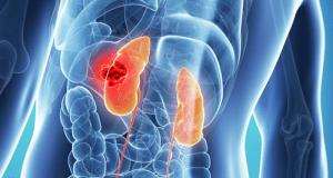 Anuncian resultados estudio sobre tratamiento para cáncer renal asociado a enfermedad de von Hippel-Lindau