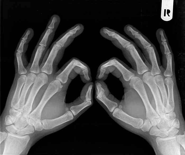 que tomar para la artrosis en las manos