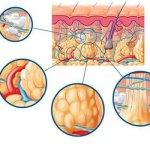 ¿Cómo se desarrolla la celulitis?