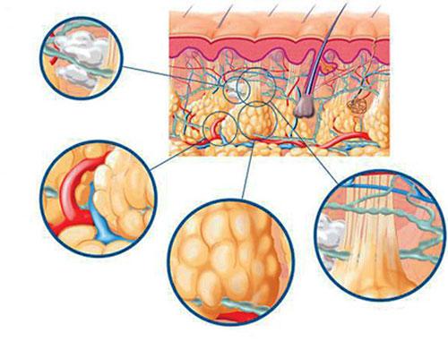 como-se-desarrolla-la-celulitis