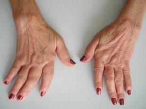 Remedios Naturales Para la Artritis Reumatoide