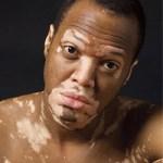 ¿Como Empieza El Vitiligo?