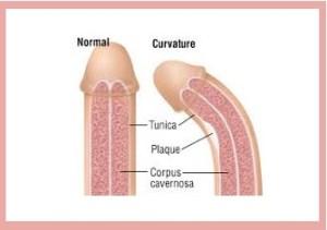 ¿Qué es la enfermedad de Peyronie?