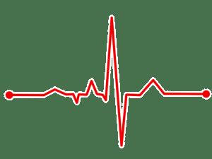 Tratamiento de La Taquicardia Sinusal