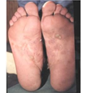 ¿Qué es la Psoriasis Pustulosa?