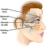 Sinusitis Etmoidal【Causas y Tratamientos】
