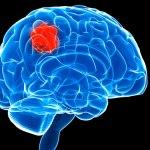 Neuroblastoma: disturbi, cause e cura