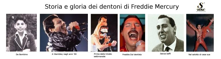 Queen, big teeth, dentoni, denti enormi