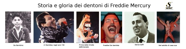 Queen, big teeth, dentoni, denti enormi