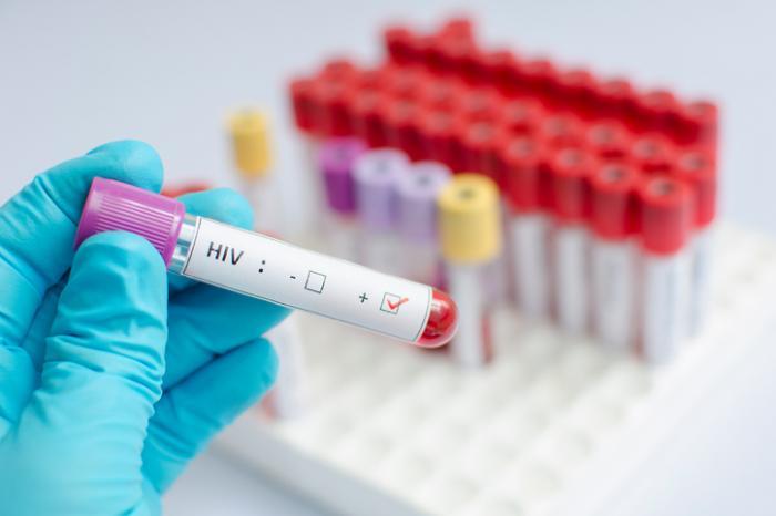 Dovere d'informativa del medico: l'obbligo di denuncia all'autorità sanitaria delle diagnosi di Hiv e Aids