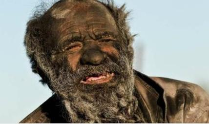 यी हुन् : विश्वकै सबैभन्दा फोहारी व्यक्ति, जसले ६० वर्षदेखि नुहाएका छैनन्