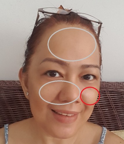 MOSP Philippines Skin Care Review After 4 Days