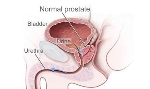 Próstata no es la única causa de STUI