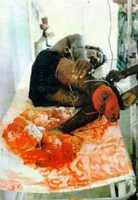 Tamils Killed By Landmines.