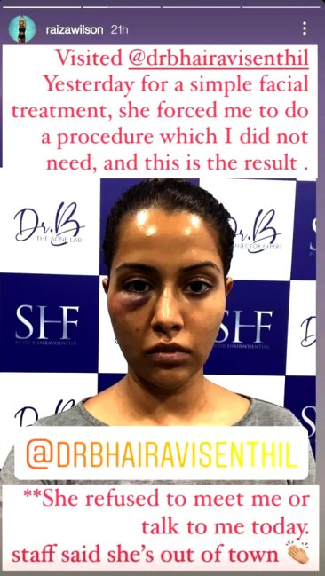 Tamil actress Raiza Wilson says she was 'forced' to undergo dermatological treatment, shares photo after it goes wrong