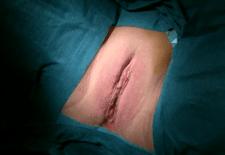 Labioplastia de reducción