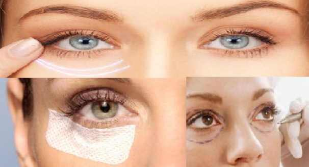 blefaroplastia_collage