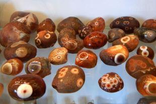 Piedras en la vesícula