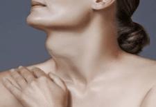 Síntomas del bocio