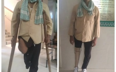 Prosthetic Limbs Donated