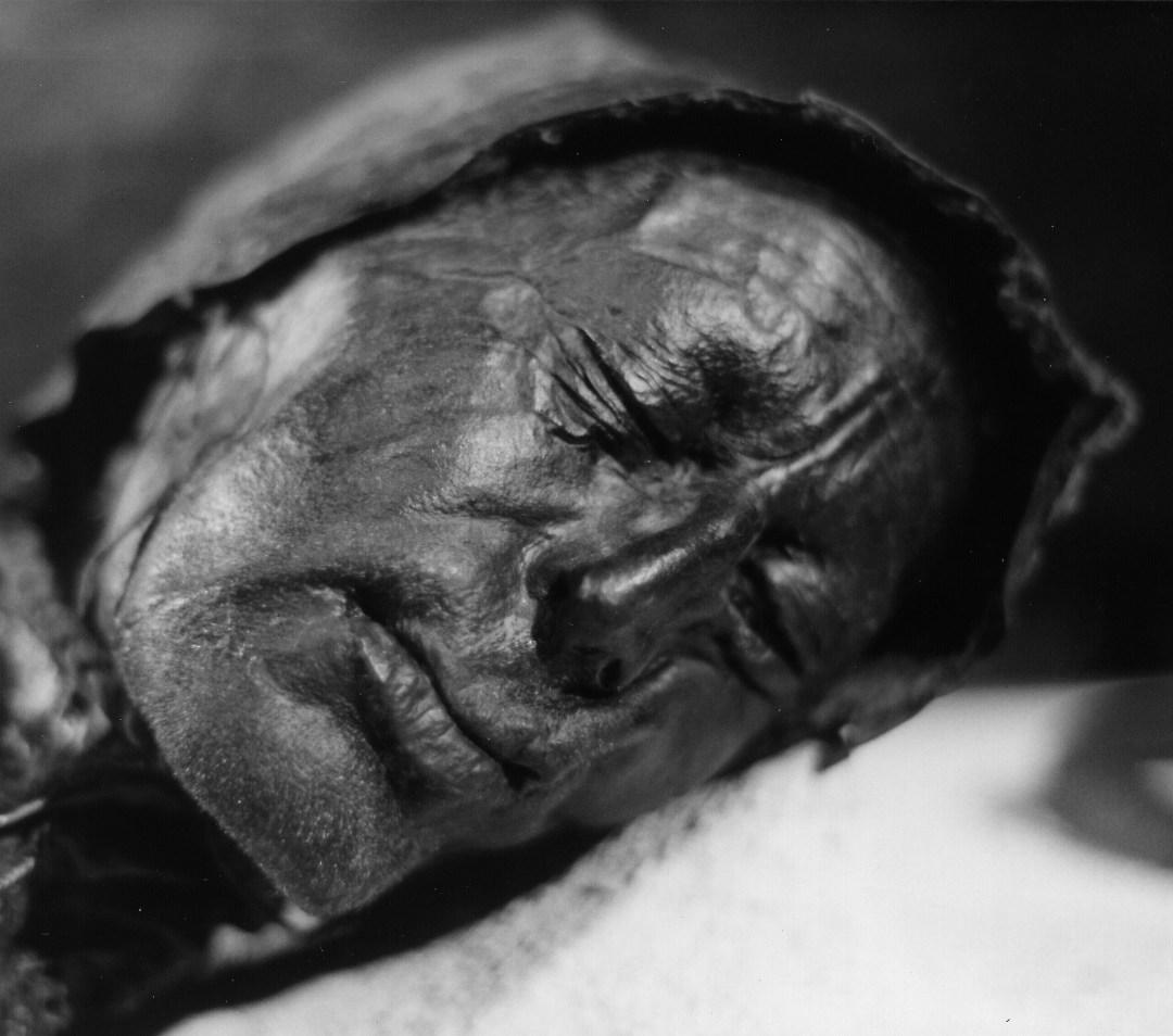 Fig. 1. Hombre de Tollund. Siglos IV-III a.C., descubierto en 1950.