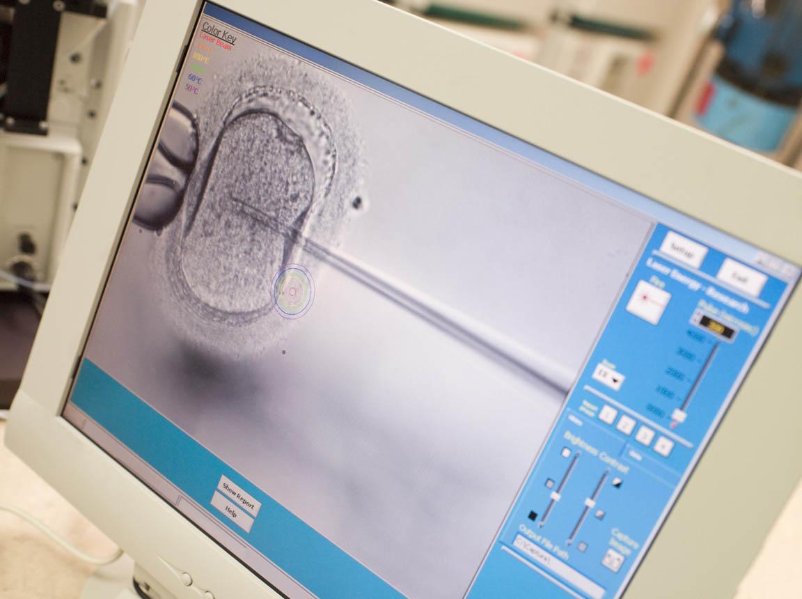 Santa Barbara Fertility Center Assisted Hatching