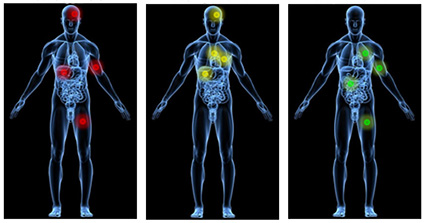 Analysis of metastatic prostate cancers suggests treatment options