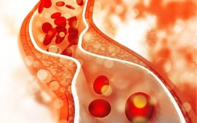 Colesterol: riscos e tratamento