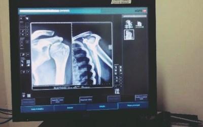Doutor Ovídio ganha aparelho de Raio-x Digital