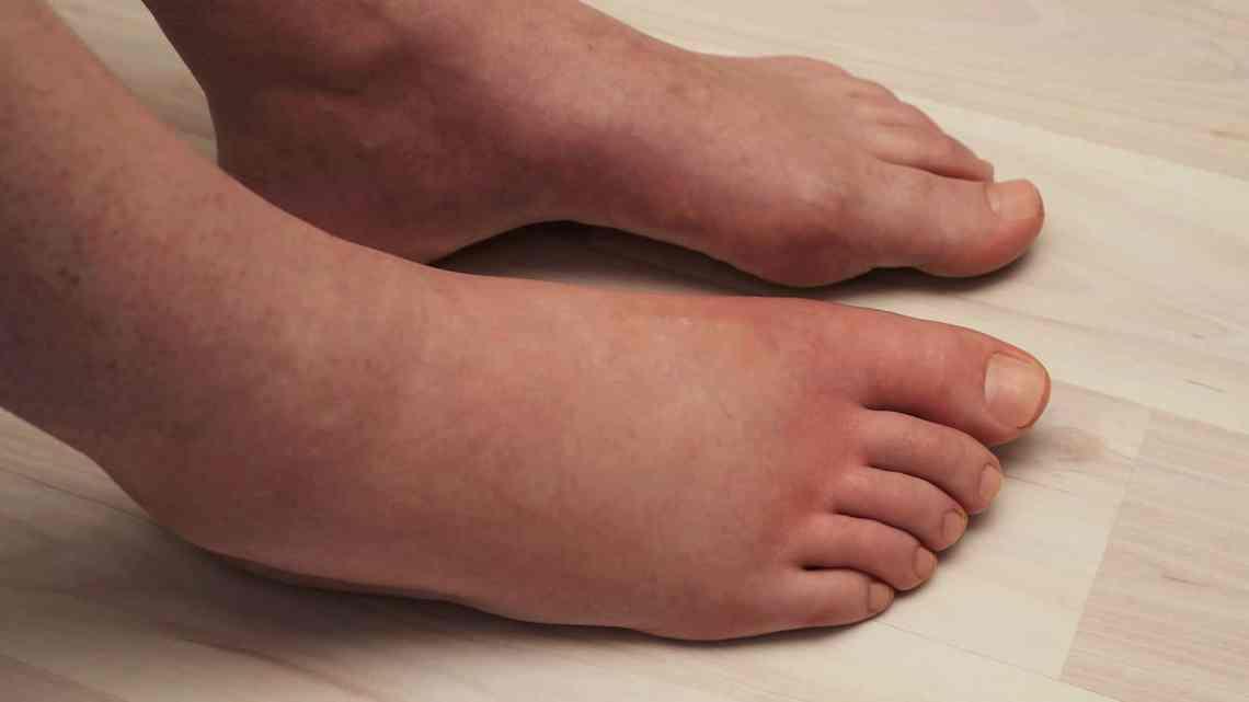 5 remèdes à la maison pour les pieds enflés pendant la grossesse ...