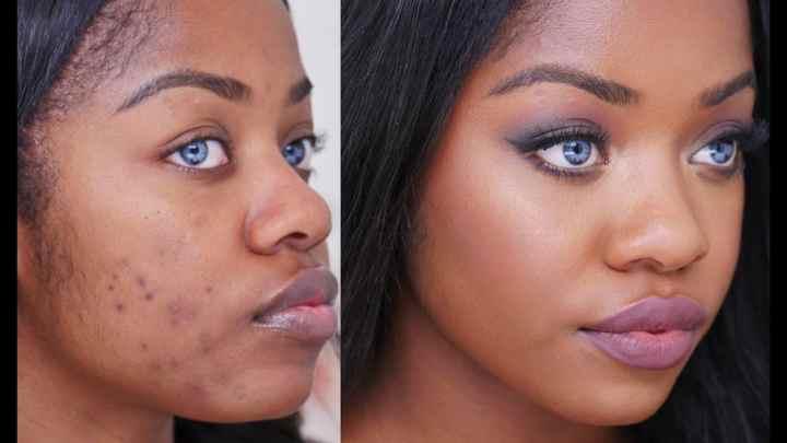 Façons naturelle de guérir l'acné sur la peau noire