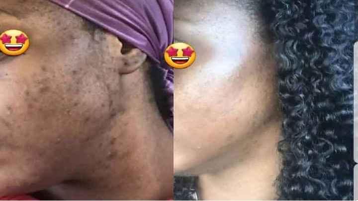 Que sont les taches brunes et sombres sur la peau noire ?