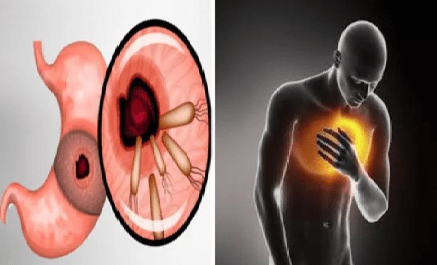 Voici comment tuer les bactéries qui causent les brûlures d'estomac et les ballonnements