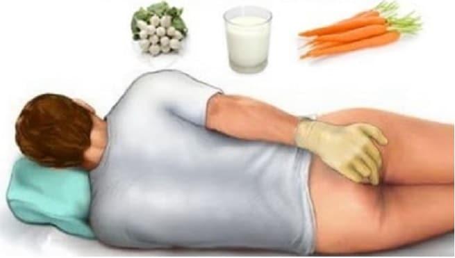 Comment guérir, se débarrasser des hémorroïdes naturellement à la maison