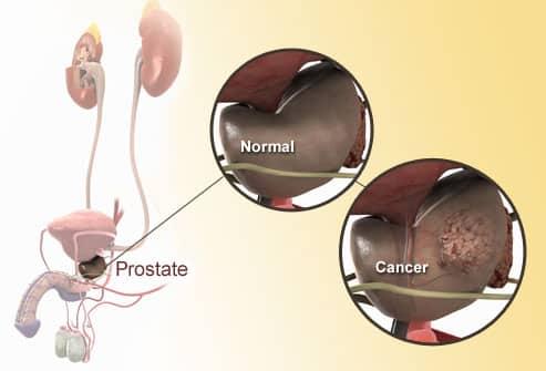 Cinq signes avant-coureurs du cancer de la prostate?