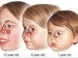 l'infection des sinus chez les enfants