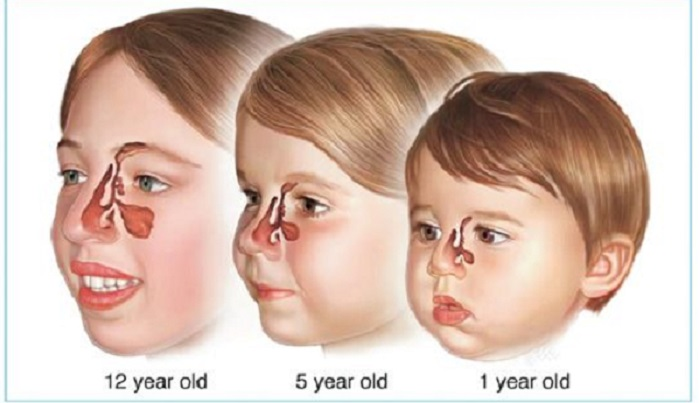 Ail pour traiter l'infection des sinus chez les enfants